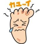 水虫の原因や症状と治療。かゆい、臭い水虫を治す