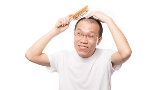 薄毛の日本人男性